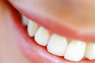 Denti-sensibili-cause-rimedi