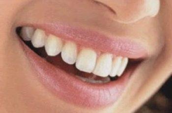 Pulizia-di-denti-gengive-corretta-igiene-orale-quotidiana