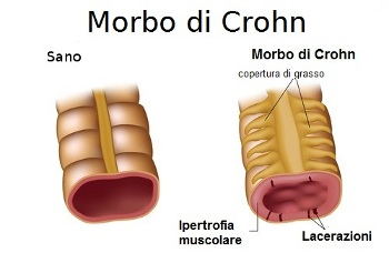 Morbo di Crohn rimedi naturali