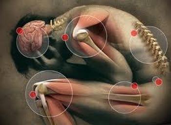Fibromialgia causa cura e rimedi naturali