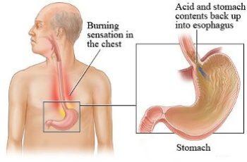 Rimedi per bruciore di stomaco o acidità di stomaco