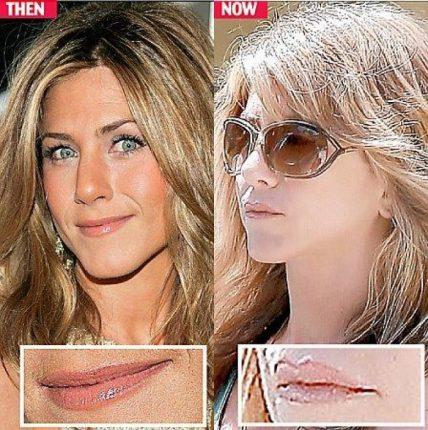 chirurgia estetica labbra