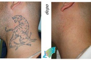 Rimuovere tatuaggi