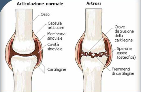 Artrosi cause
